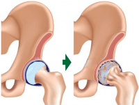 股関節の変性