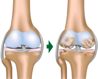 膝関節の変性