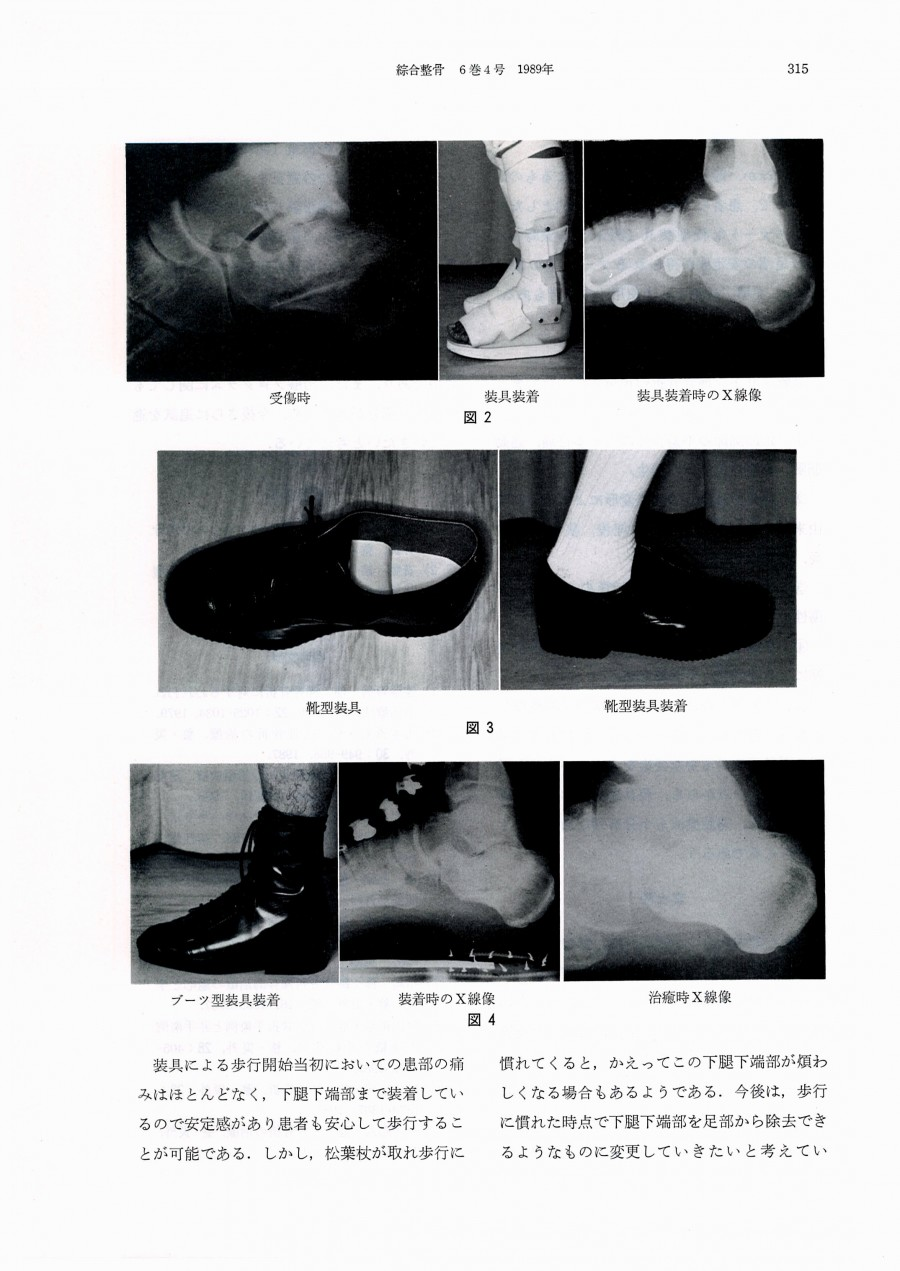 踵骨骨折の装具療法