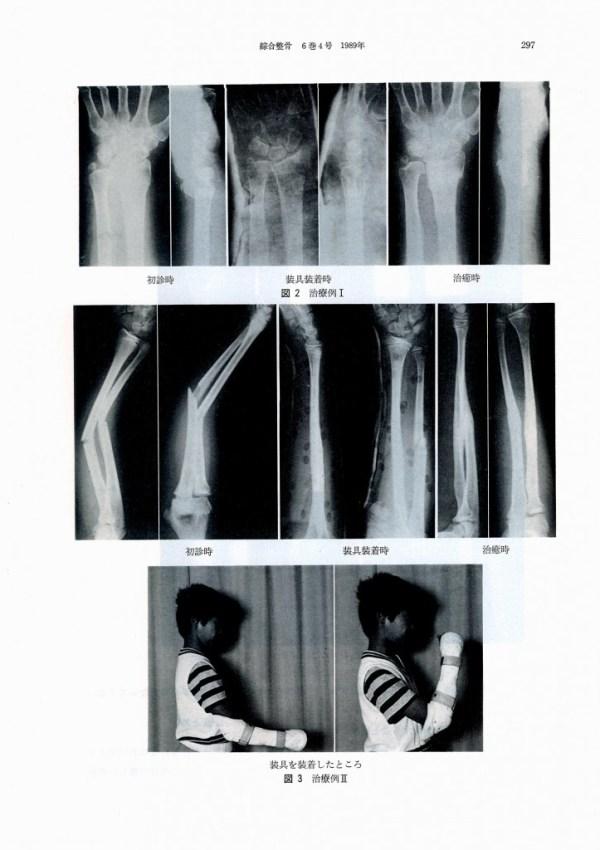前腕骨骨折の装具療法