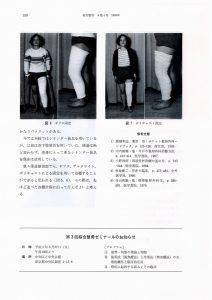 膝蓋骨骨折骨折の装具療法