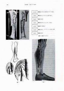 下腿骨骨折の装具療法