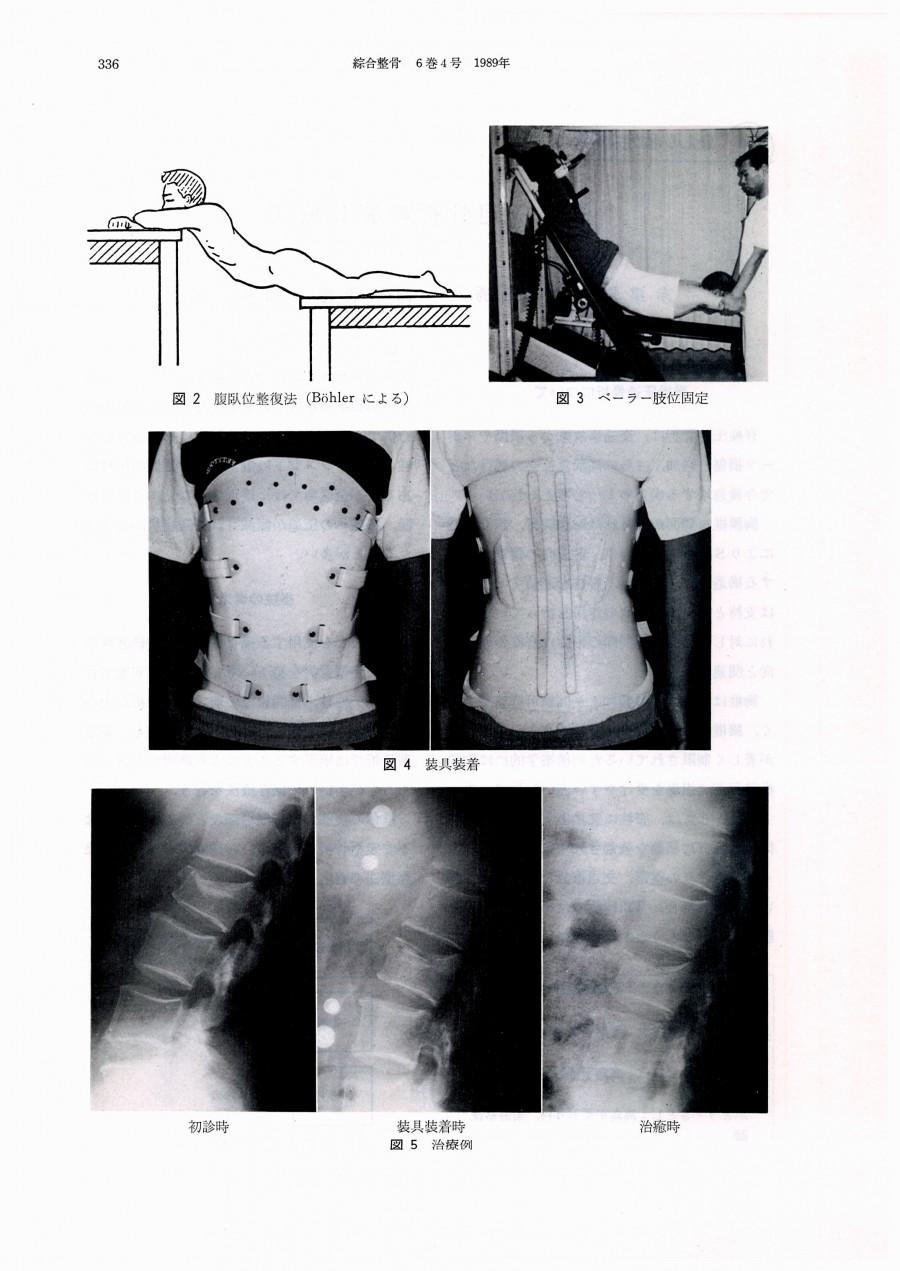 脊柱圧迫骨折の装具療法