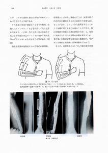 上腕骨骨幹部骨折の装具療法