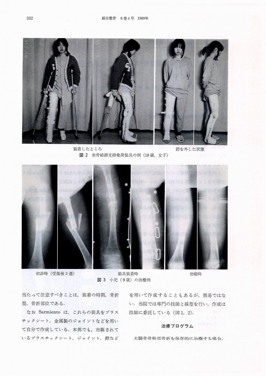 大腿骨骨幹部骨折の装具療法